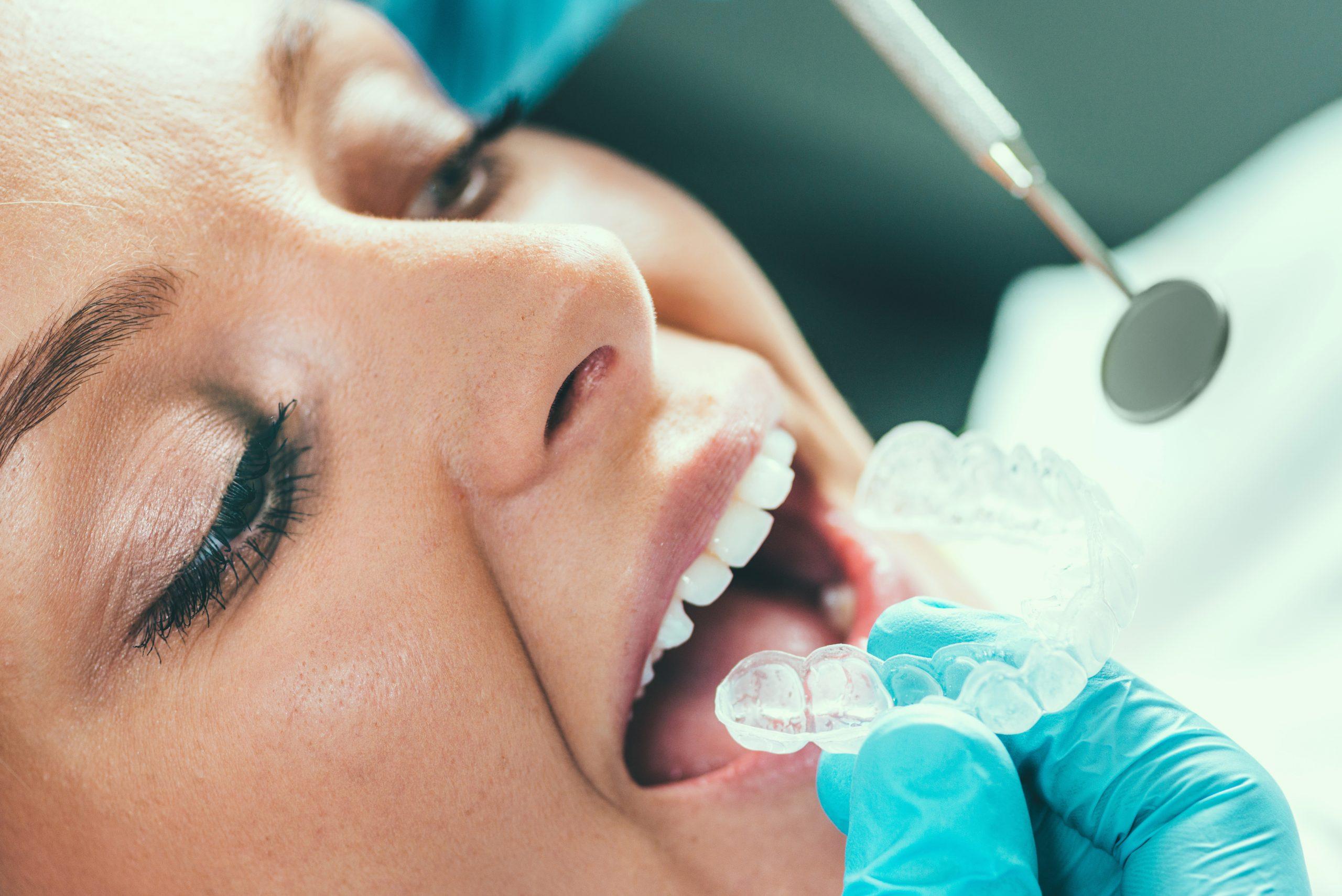Ar viską žinote apie dantų balinimą?